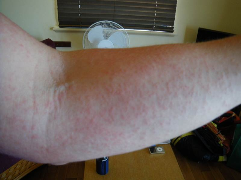 update sunscreen allergy might be sun allergy general