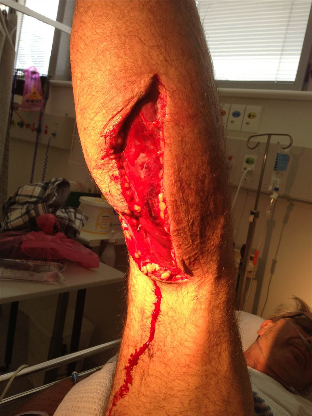 Sup Injuries Stand Up Paddle Forums Page 1