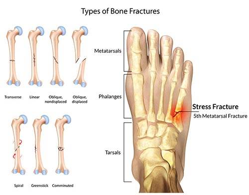 Metatarsal Foot stress fractures | General Discussion Forums