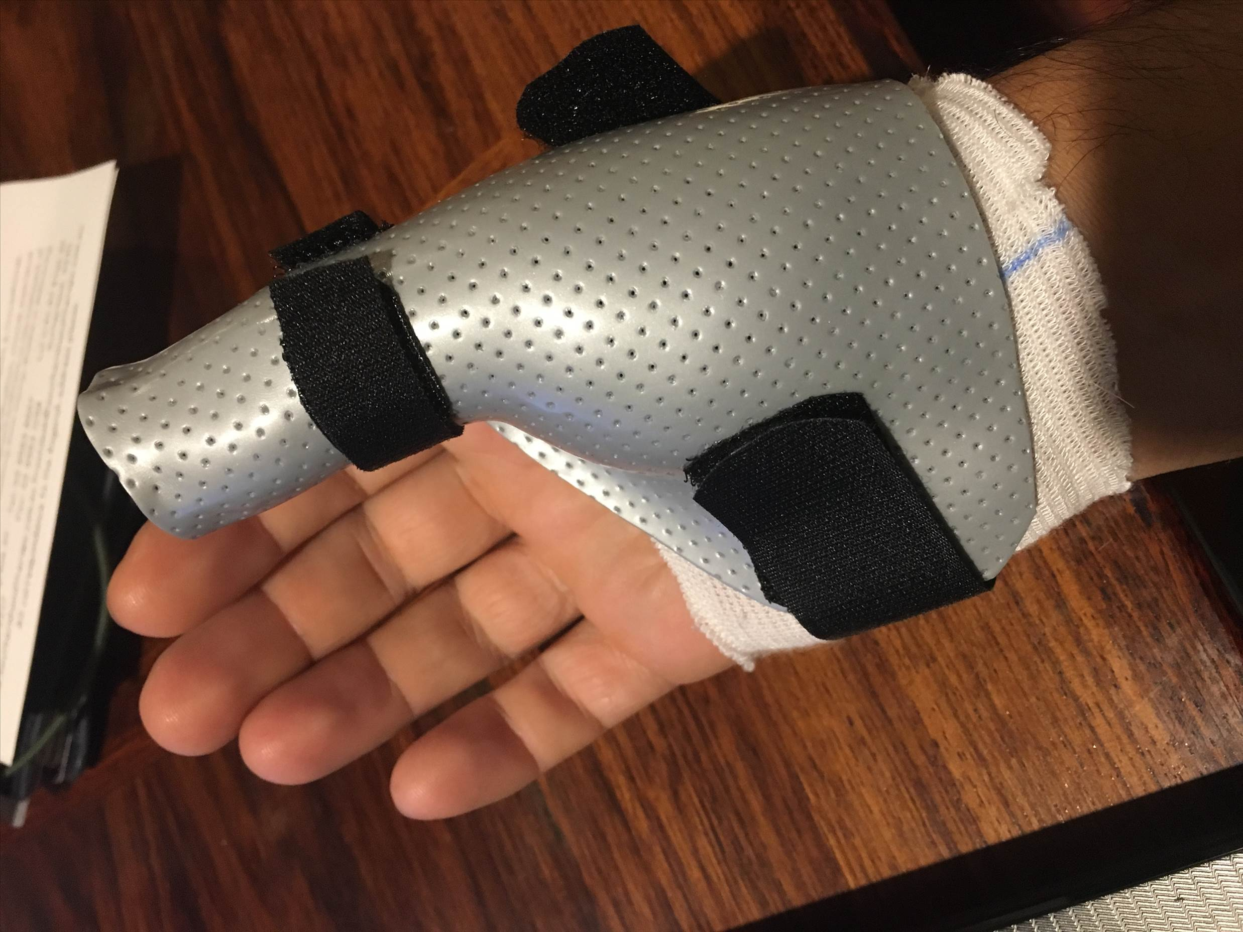Thumb Fracture Stand Up Paddle Forums Page 1